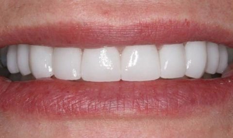 Perfected smile after porcelain veneers