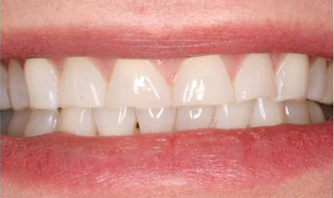 Worn smile before porcelain veneers