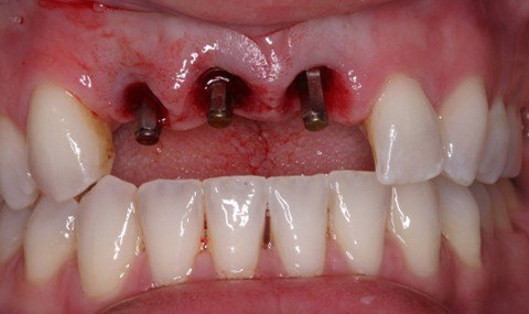 Missing teeth with dental implants visible