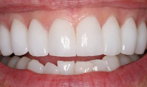 Flawless smile after cosmetic dentistry