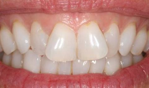 Oversized front teeth before cosmetic dentistry