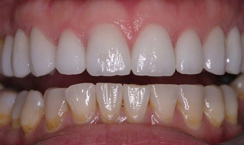 Evenly spaced teeth after Invisalign