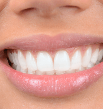 Closeup of smile with dental bonding