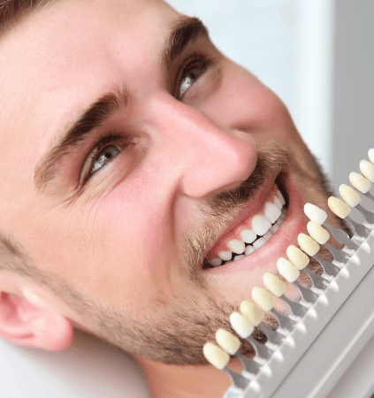Man's smile compared with teeth whitening chart