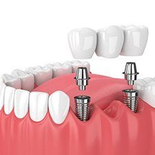 Model implant supported denture