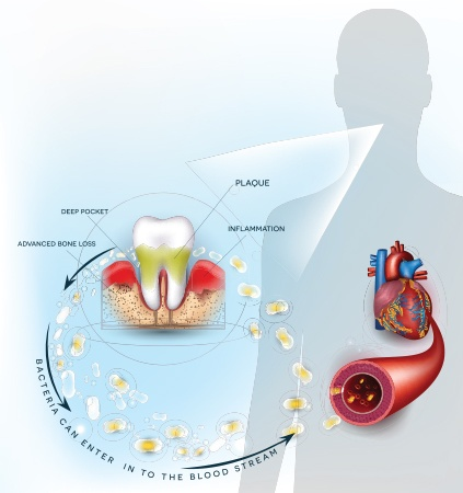 Animated representation of gum disease impacting overall health